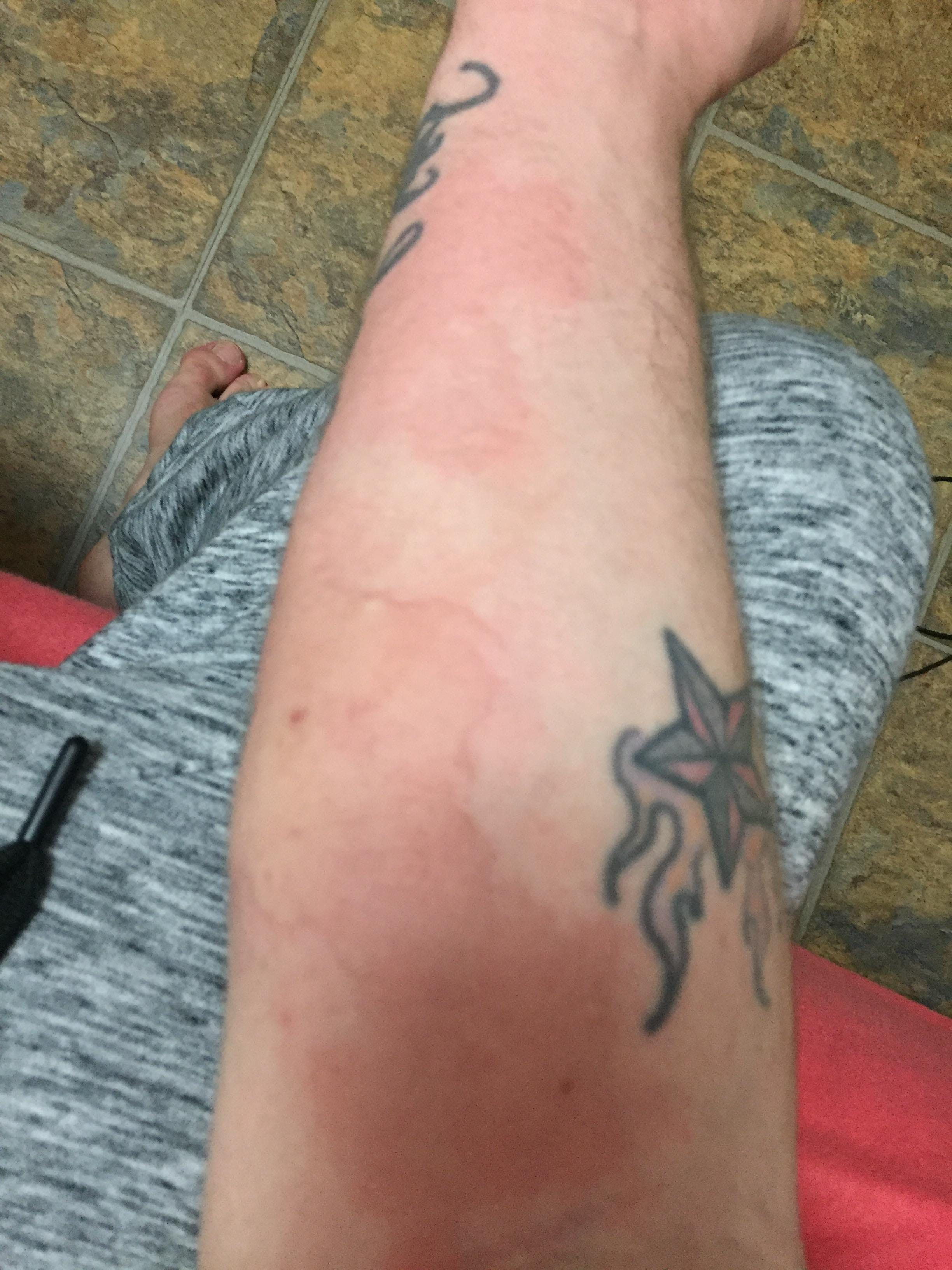 A rash that resulted from injecting meth.