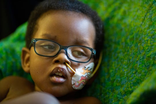 E'Yon Rankins, 2, lays in a chair with a feeding tube in place at his home in the Westwood neighborhood of Cincinnati on Tuesday, Nov. 20, 2018. Rankins was born with a genetic disorder, a deleted chromosome, rendering him mute and immobile.