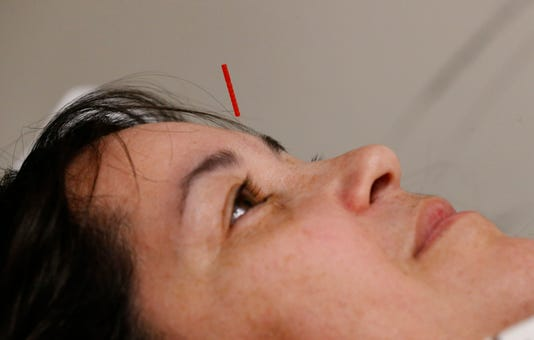 Emergency Room Acupuncture