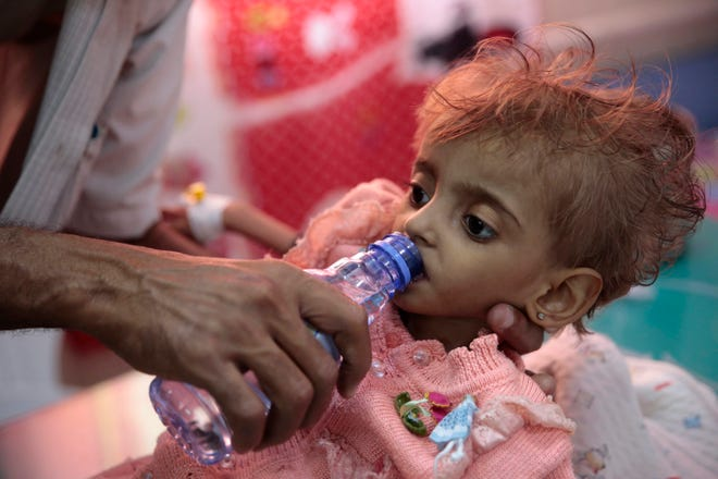 FILE - In this Thursday, Sept. 27, 2018, file photo, a father gives water to his malnourished daughter at a feeding center in a hospital in Hodeida, Yemen. An international aid group says an estimated 85,000 children under age 5 may have died of hunger and disease since the outbreak of Yemen's civil war in 2015.
