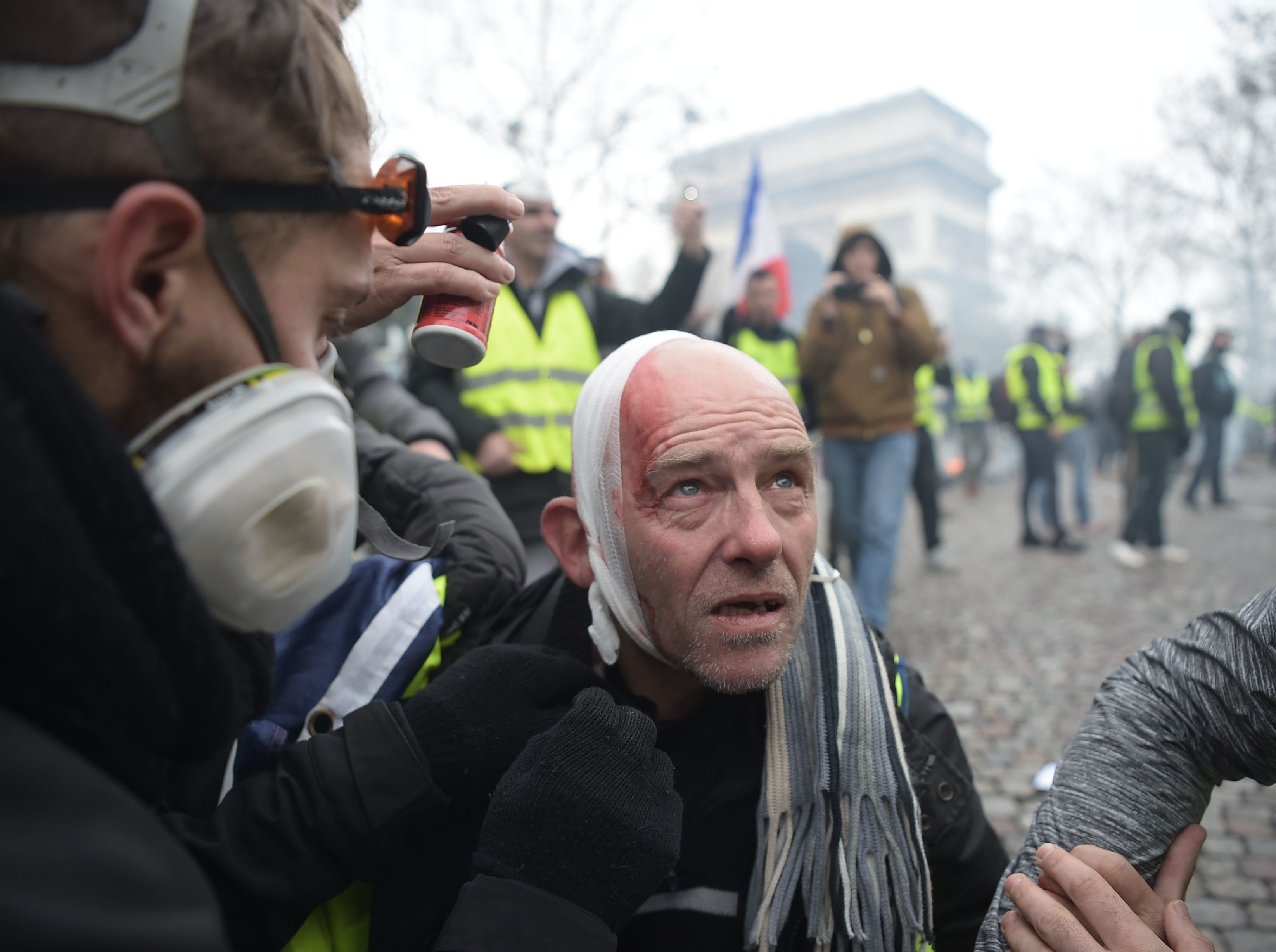 An injured Yellow vest protestor looks on on the Champs Elysees in Paris, on Nov. 24, 2018 during a protest against rising oil prices and living costs.