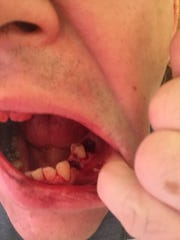 Here are the effects meth use had on his teeth.
