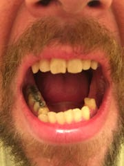 Seven teeth had to be pulled as a result of his meth use.