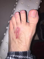 Due to meth use, an infection developed on his foot.
