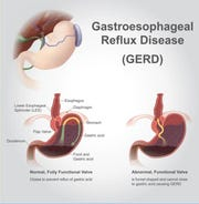GERD can be a risk factor for more serious illnesses.
