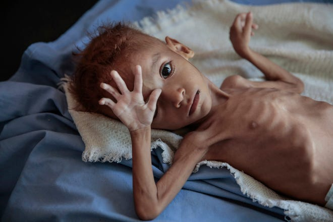 A severely malnourished boy rests on a hospital bed at the Aslam Health Center in Hajjah, Yemen, Oct. 1, 2018. The impoverished Arab country is experiencing a humanitarian crisis due to an ongoing brutal conflict that has lasted more than three years and driven millions to the brink of famine.