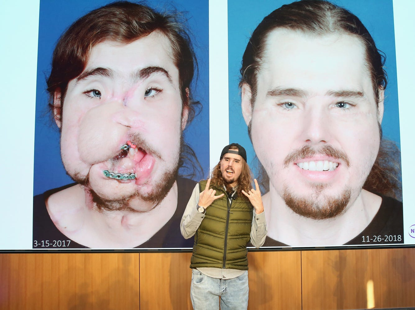 Cameron Underwood poses with his before and after face transplant photos at NYU Langone. Underwood tried to commit suicide by shooting himself in the face on June 2016.  Approximately 18 months later a team of 100 medical professionals performed the transformative surgery.