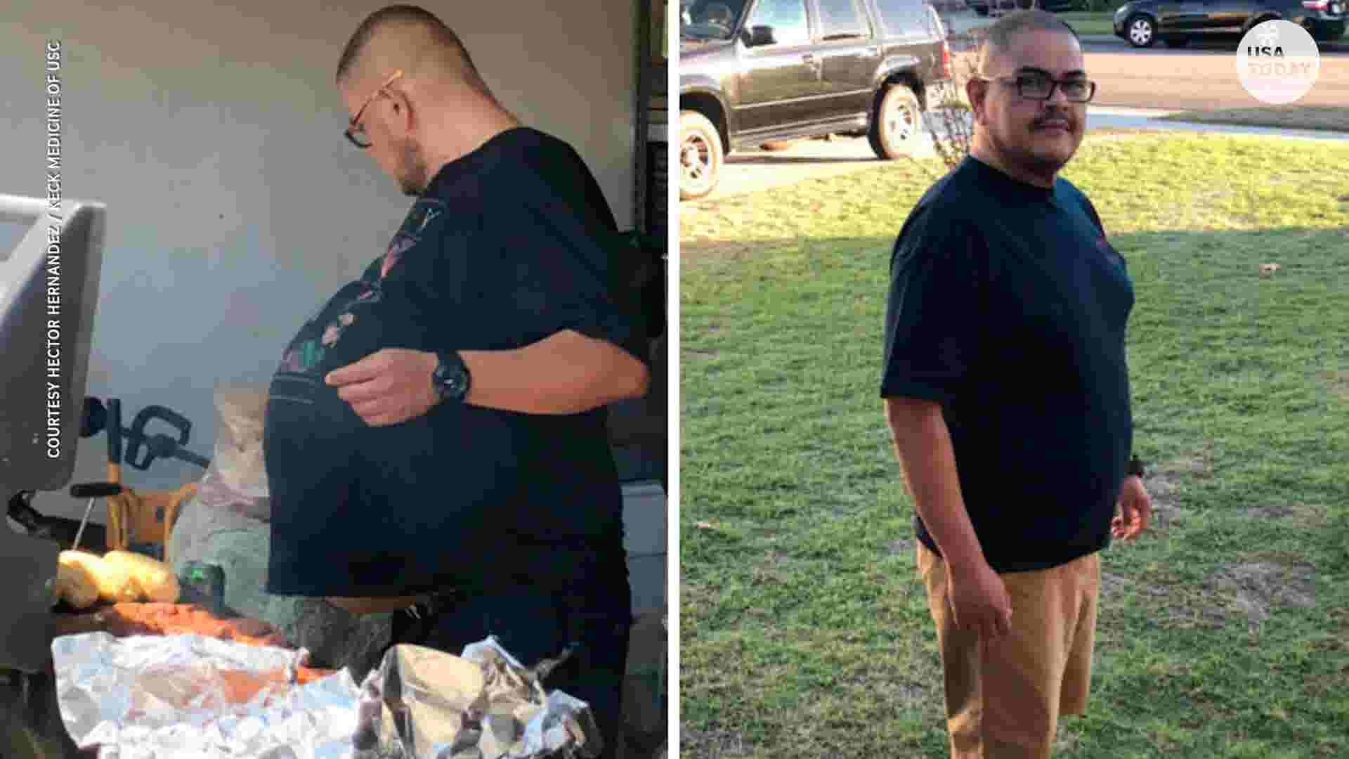 His abnormal beer belly was actually a 77-pound tumor