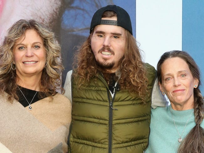 Bev Bailey-Potter, left, with her son Cameron Underwood, and Sally Fisher attend the 2018 NYU Langone Face Transplant Announcement at the NYU Langone Medical Center in New York.  Fisher is the mother of the donor William Fisher.