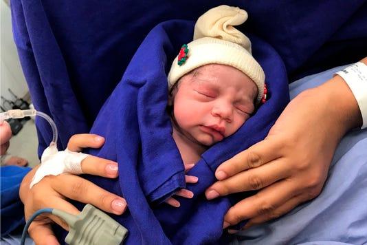 Ap Uterus Transplant Baby I Bra