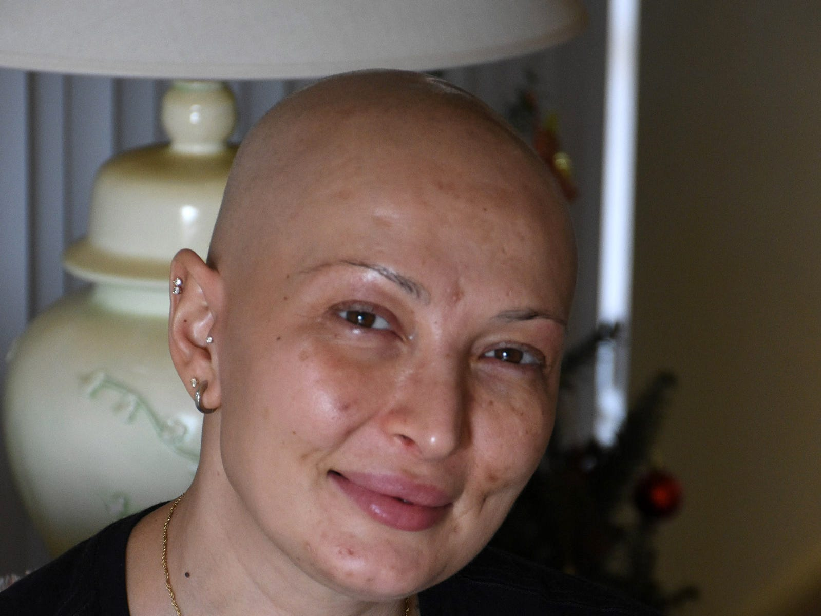 Marco Island resident Laura Gunga is in the middle of a course of chemo and radiation, along with a double mastectomy.