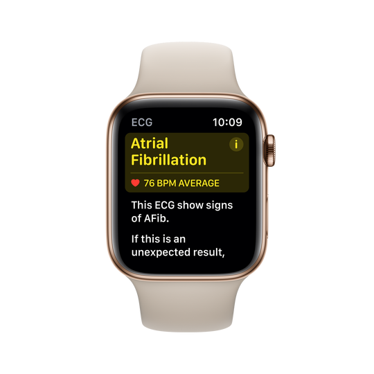 Apple Watch can detect AFib, a common case of strokes.