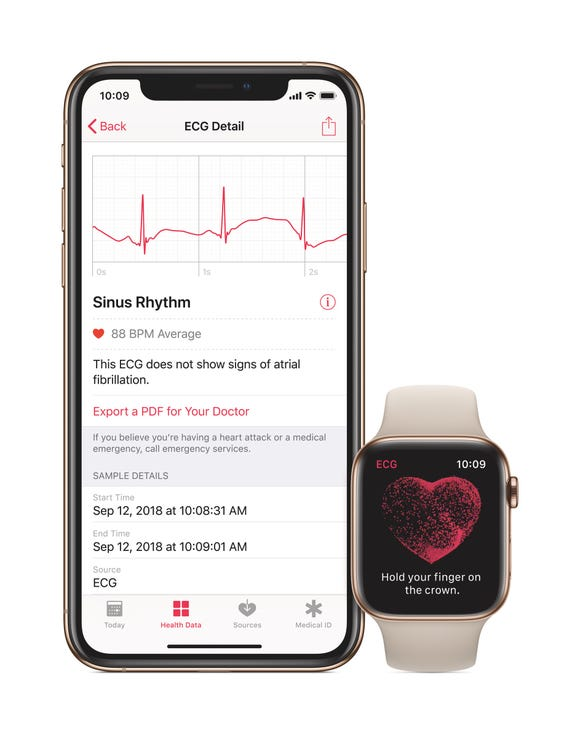 After the Apple Watch ECG feature delivers a result, you'll see a waveform you can share with your doctor.