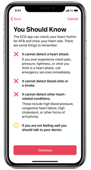 The Apple Watch cannot detect a heart attack.