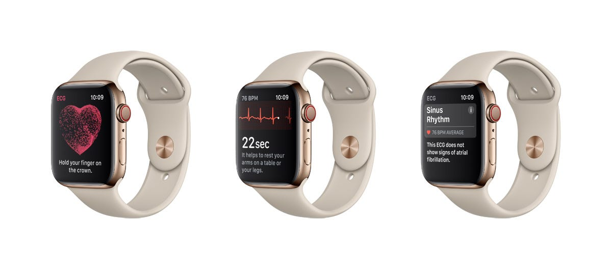 Apple Watch ECG feature to detect irregular heart beat launches. Here's how it works