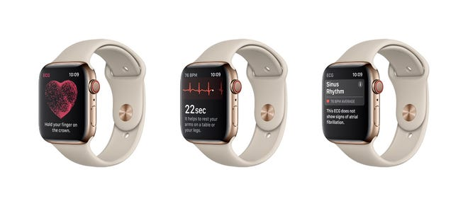 New heart features on the Apple Watch