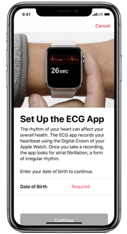 Apple has clear messaging when you set up the ECG feature on the Apple Watch.