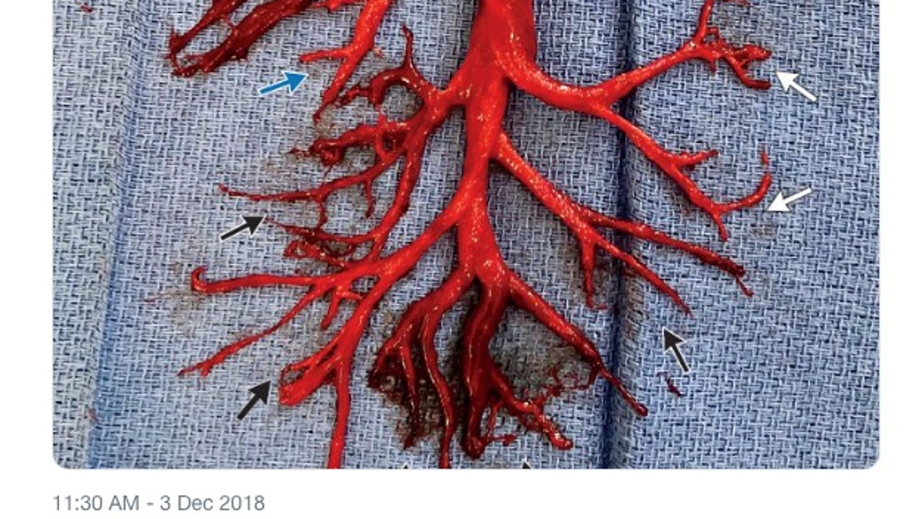 Nejm Shares Odd Photo Of Blood Clot Shaped Like Lung A Man Spit It Up