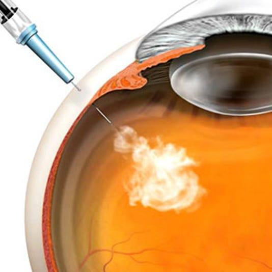 Eye injections are 'magic bullets' for retinal disease
