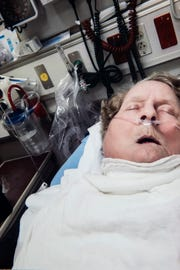 Connie Thames took this photo of her mother, Dolly Moore, after she was admitted to the hospital in Gainesville, Fla. in September 2014. The nursing home told Thames that it was a suspected bug bite, but Moore died from sepsis a few days later.