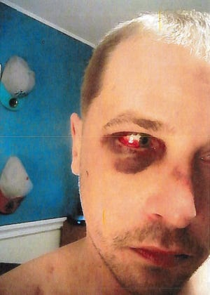 Christopher Sammut, a Browns Mills man claiming police abuse, included photos of alleged injuries in an excessive-force lawsuit against six New Jersey State Police troopers.