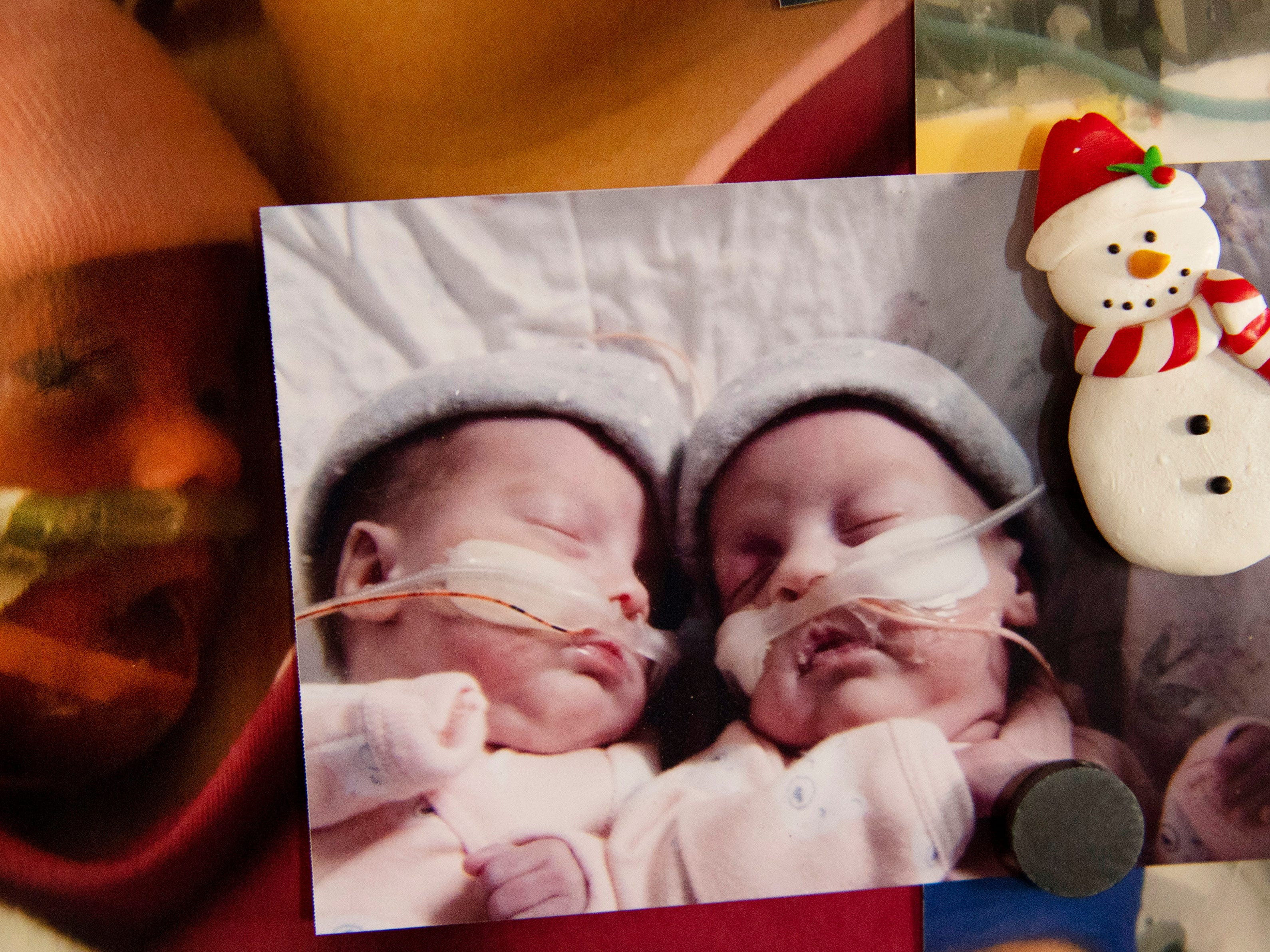 The refrigerator in the Harper's home has pictures of the preemie twins, Violet and Indigo, at different stages of their young lives. After spending nearly six months together sharing the same amniotic sac and placenta, the two have been living in separate incubators for the first 113 days of their lives.