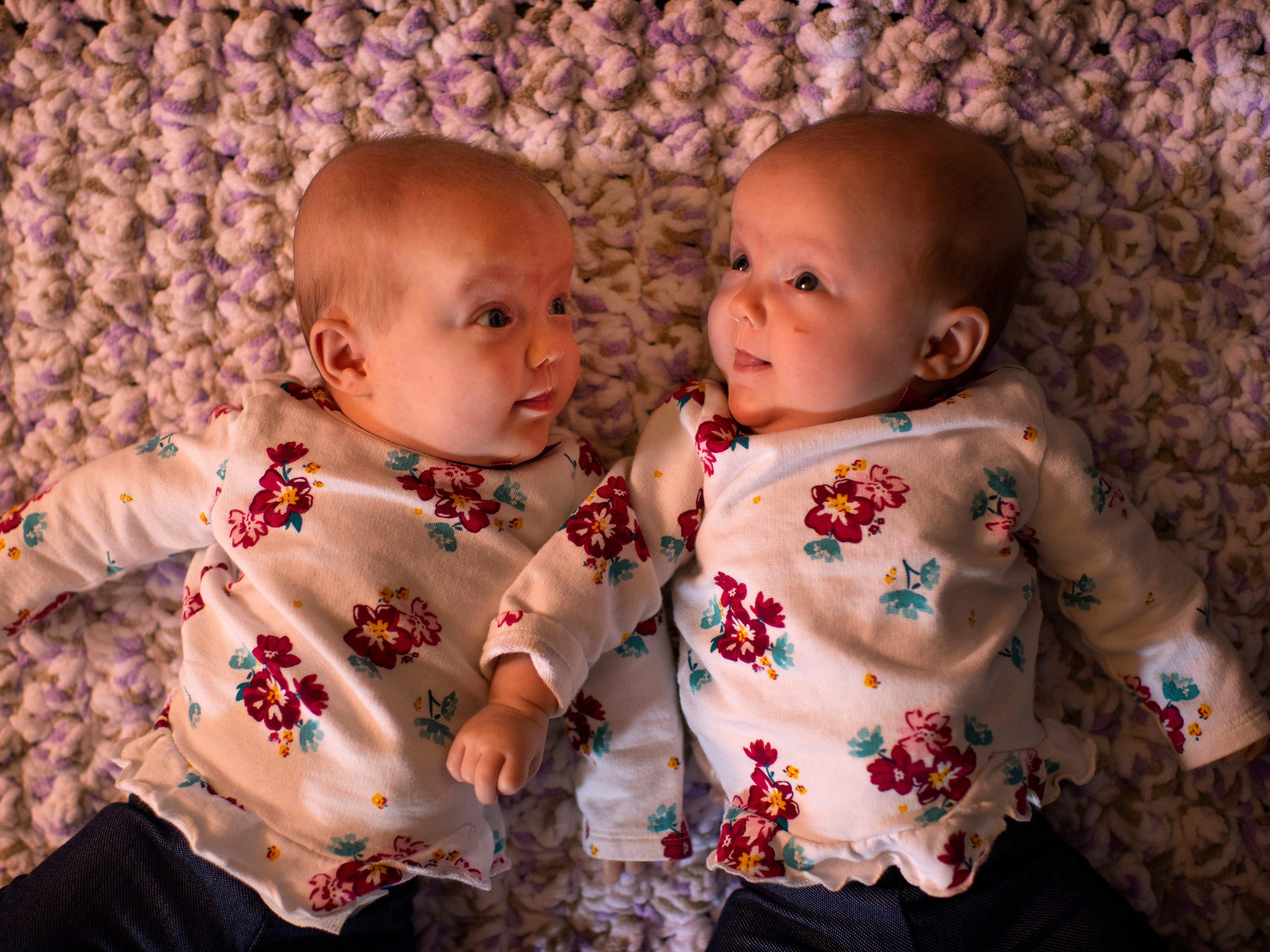 Sisters Violet, left, and Indigo have been through a lot in their four months of life. The identical twin sisters were born not quite 28 weeks into their gestational journey – 12 weeks early – to parents Heather and Dave Harper of Newburgh, Ind., on July 30, 2018. The Monoamniotic-Monochorionic twins (aka MoMo twins or Mono Mono twins) shared the same amniotic sac and placenta. The condition only occurs in about one-percent of identical twin births.