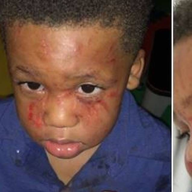 State shuts down Mississippi daycare after dad's viral post shows toddler's face scratched
