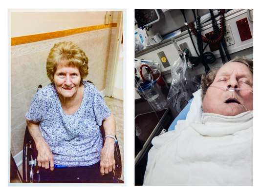Dolly Moore before and after hospitalization
