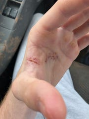The hand of Airline wrestler Tucker Almond prior to his recent surgery.