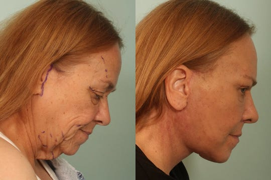 A facelift can provide dramatic results.