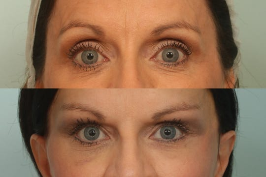 The gliding browlift procedure takes only 30 minutes with results that last for years.