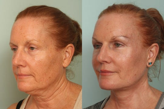 Today's facial surgeries provide dramatic results with little-to-no visible scarring.