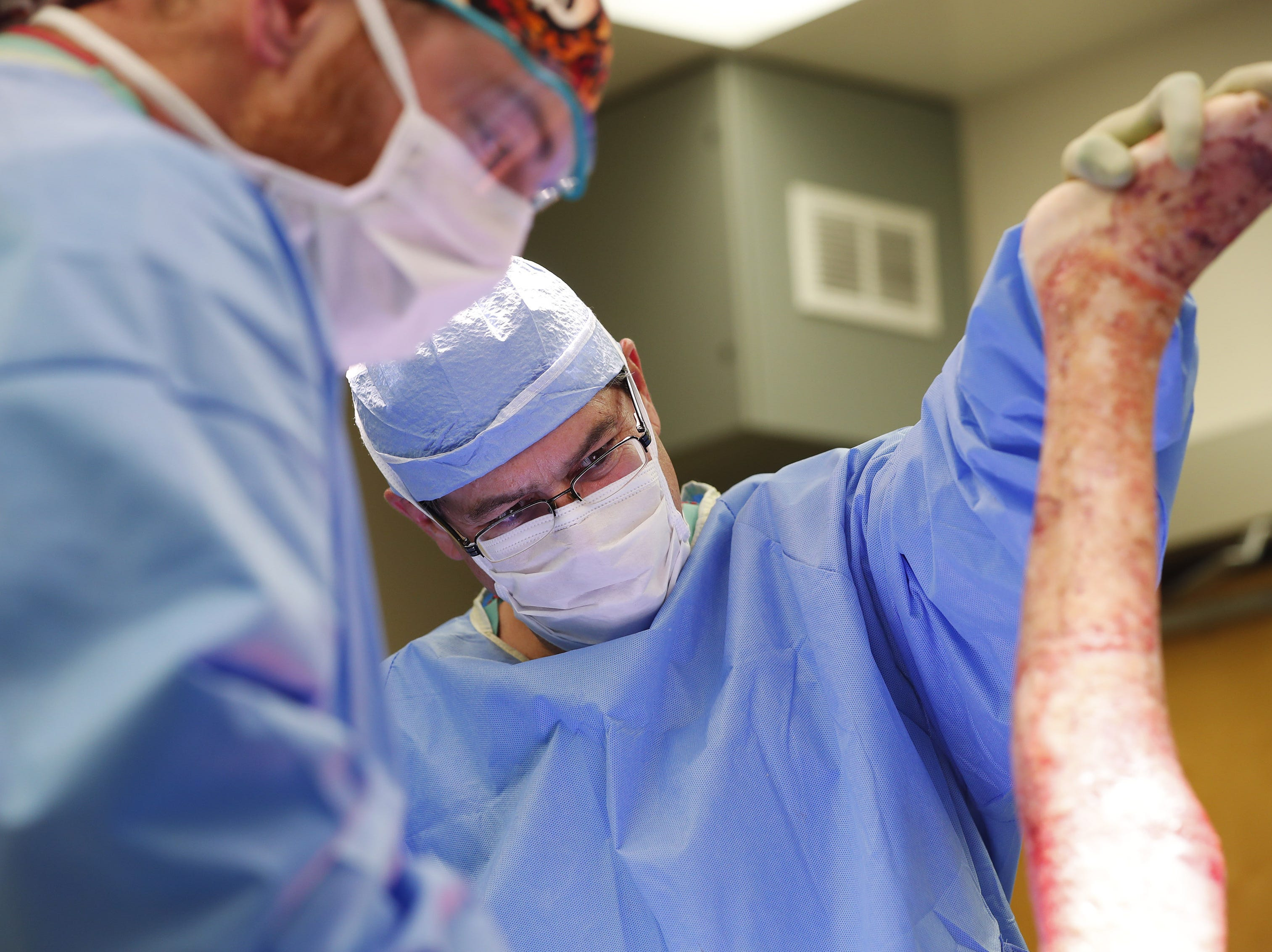 Dr. Kevin Foster assesses Isabella McCune's burns during skin-graft surgery at the Arizona Burn Center in Phoenix May 24, 2018. She was severely burned in a home accident in March.