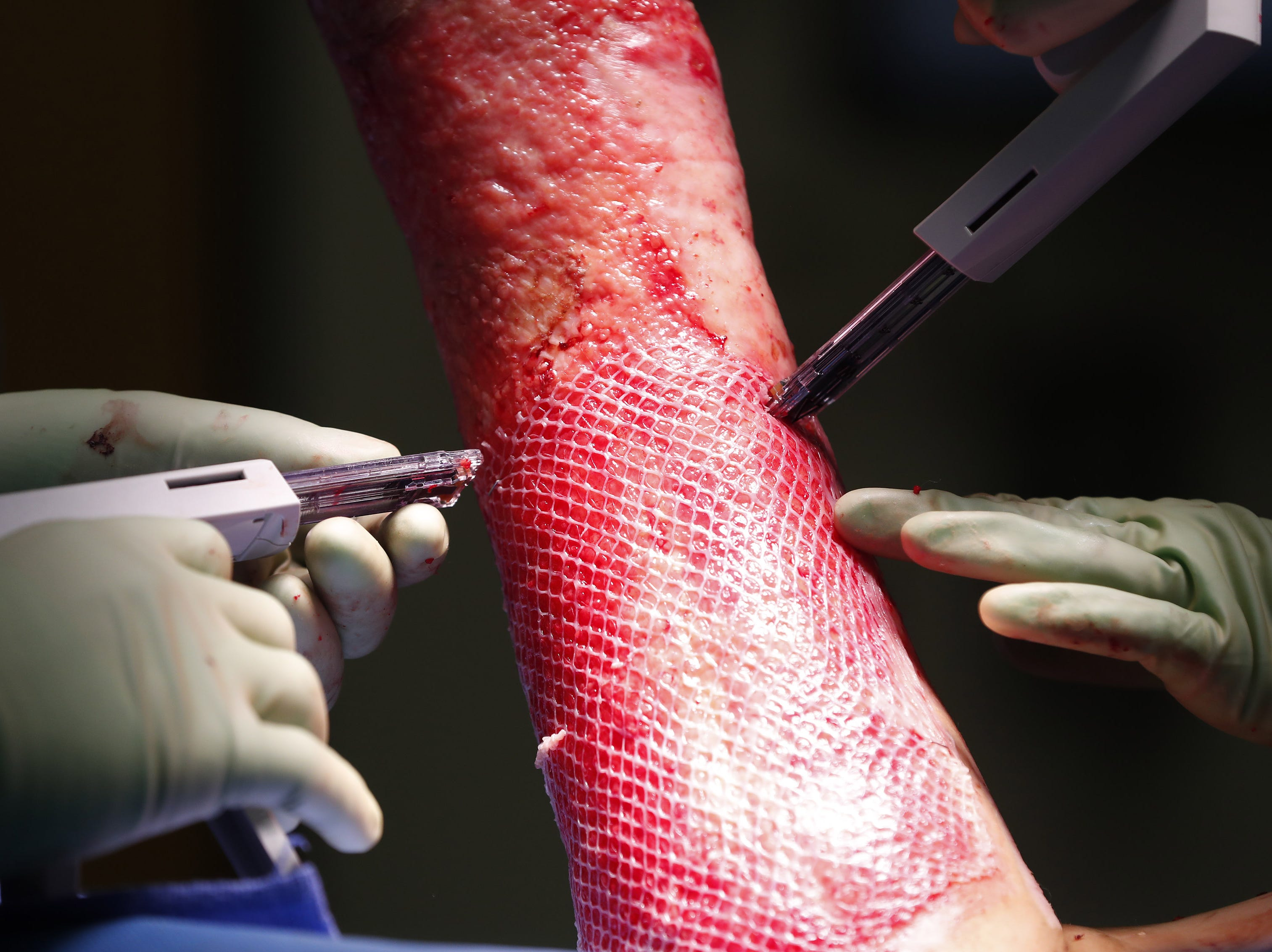 A skin graft is stapled in place during surgery for Isabella McCune at the Arizona Burn Center in Phoenix May 24, 2018. She was severely burned in a home accident in March.