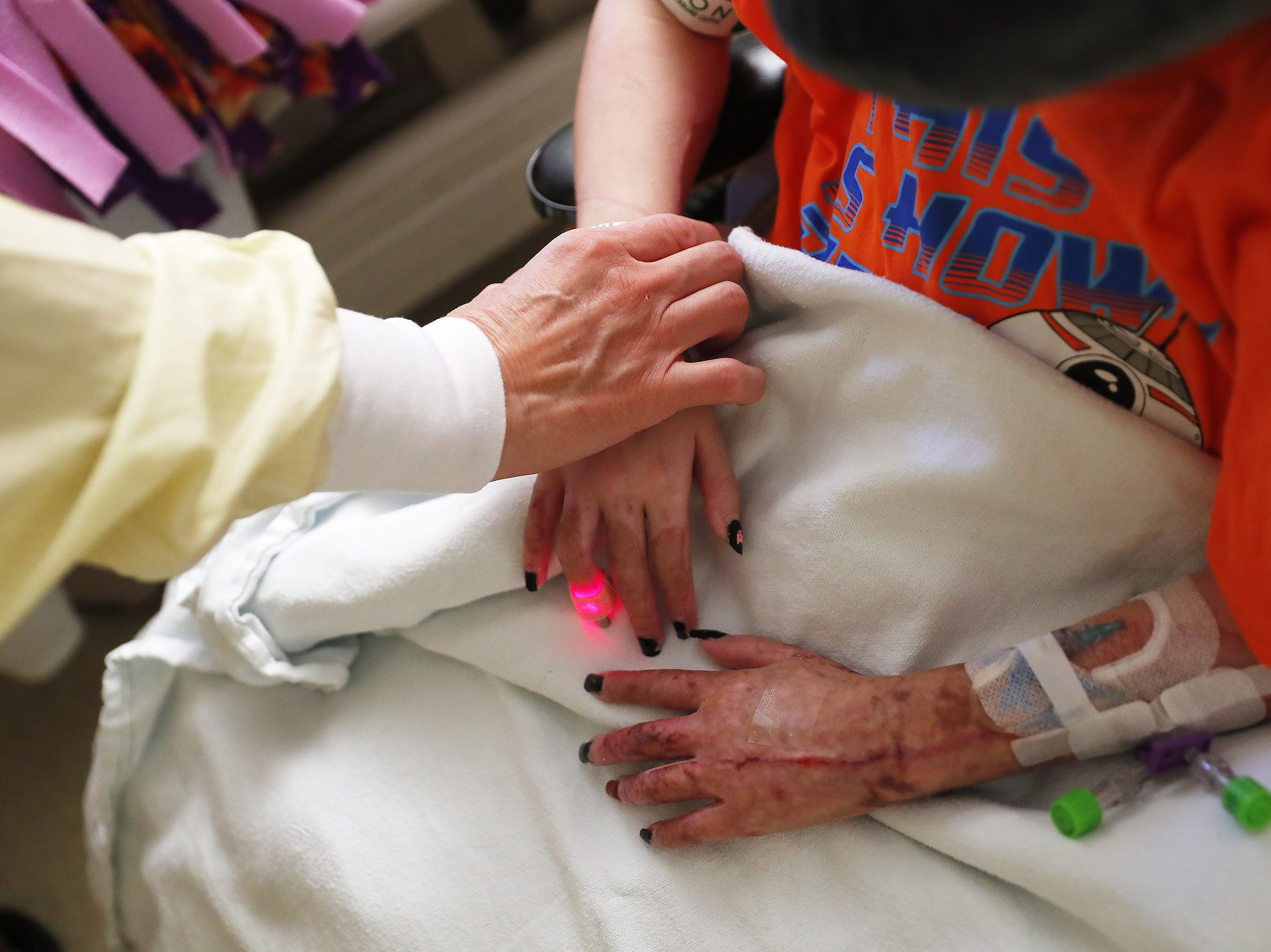 Lilly McCune holds the hand of her daughter, Isabella, while she recovers in her room at the Arizona Burn Center in Phoenix June 14, 2018. She was severely burned in a home accident in March.