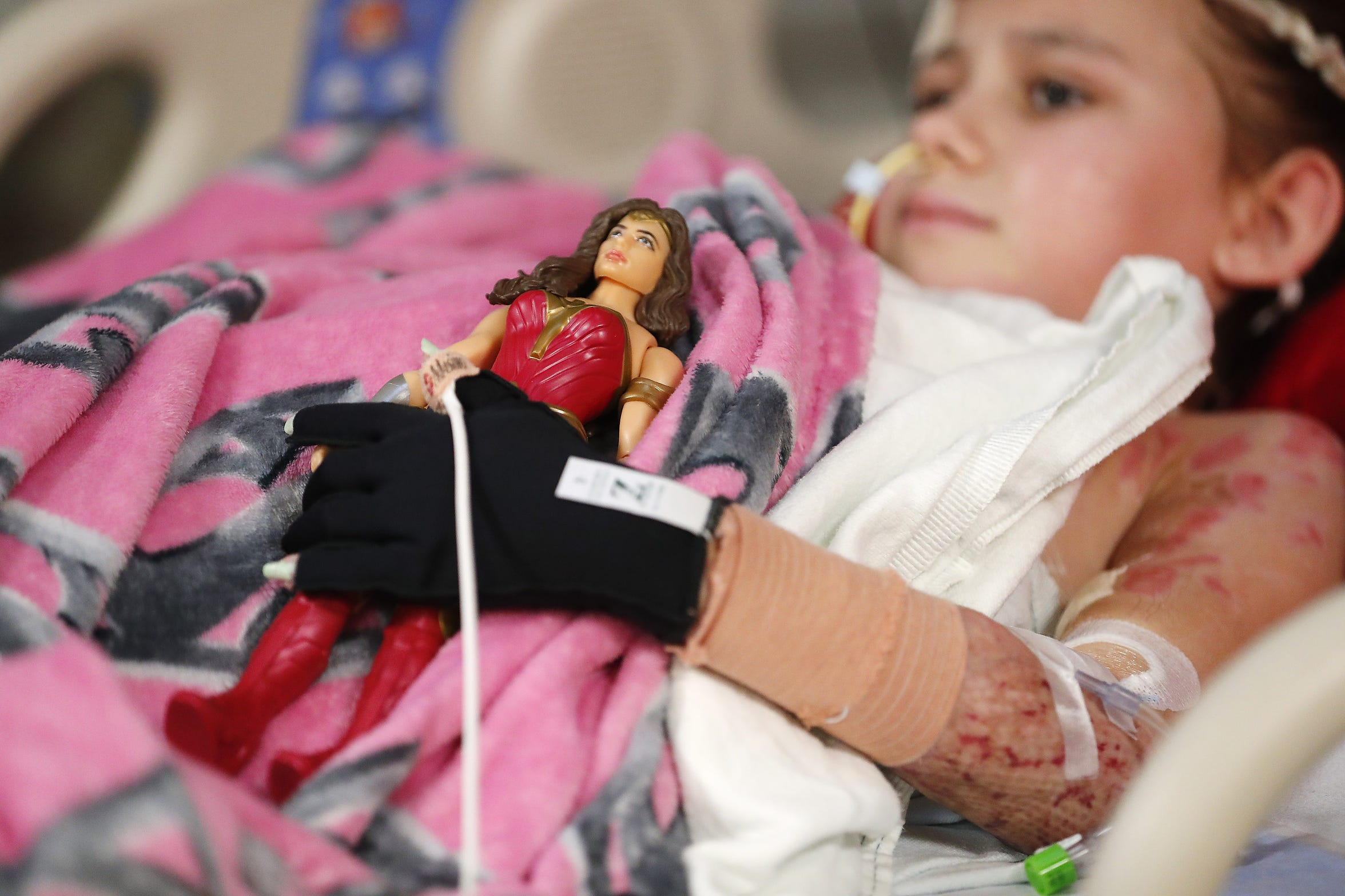 Isabella McCune holds a Wonder Woman doll before surgery at the Arizona Burn Center in Phoenix May 24, 2018. She was severely burned in a home accident in March.