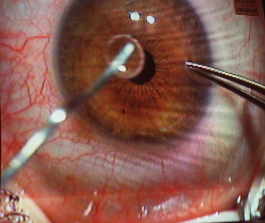 Close-up view of a Lasik eye surgery.