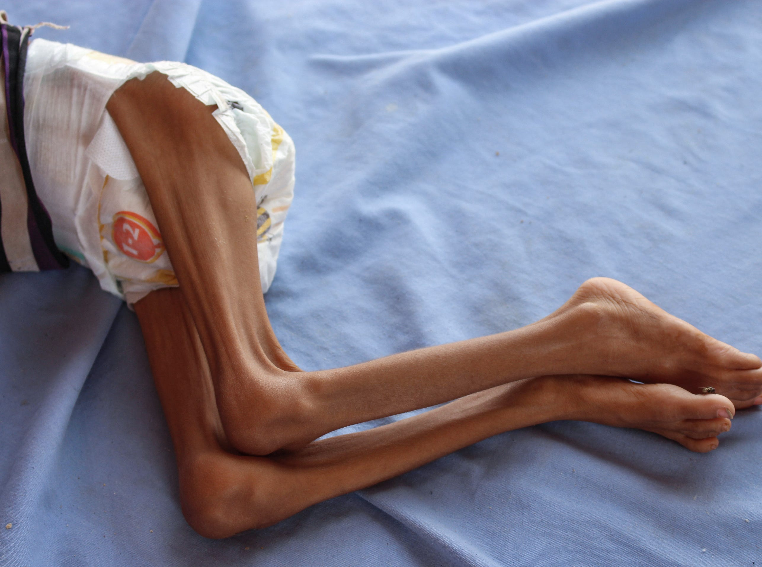 A Yemeni child suffering from malnutrition lies on a bed at a hospital in the northern district of Abs in the northwestern Hajjah province on Sept. 19, 2018. - The three-year conflict between Yemen's Saudi-backed government and Huthi rebels linked to Iran has pushed the already impoverished country to the brink of famine, leaving many unable to afford food and water, with a total of 5.2 million children at risk of starvation according to the Britain-based NGO Save the Children.