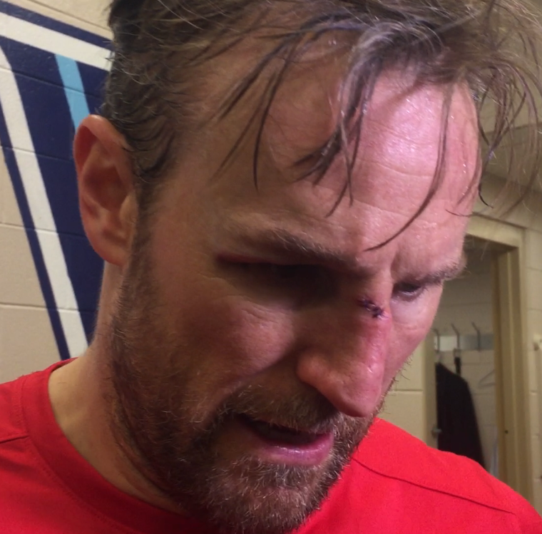 Niklas Kronwall took a stick to the face in game...