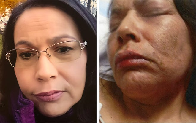Paula Popp before and after she was burned by boiling water during a domestic violence incident.
