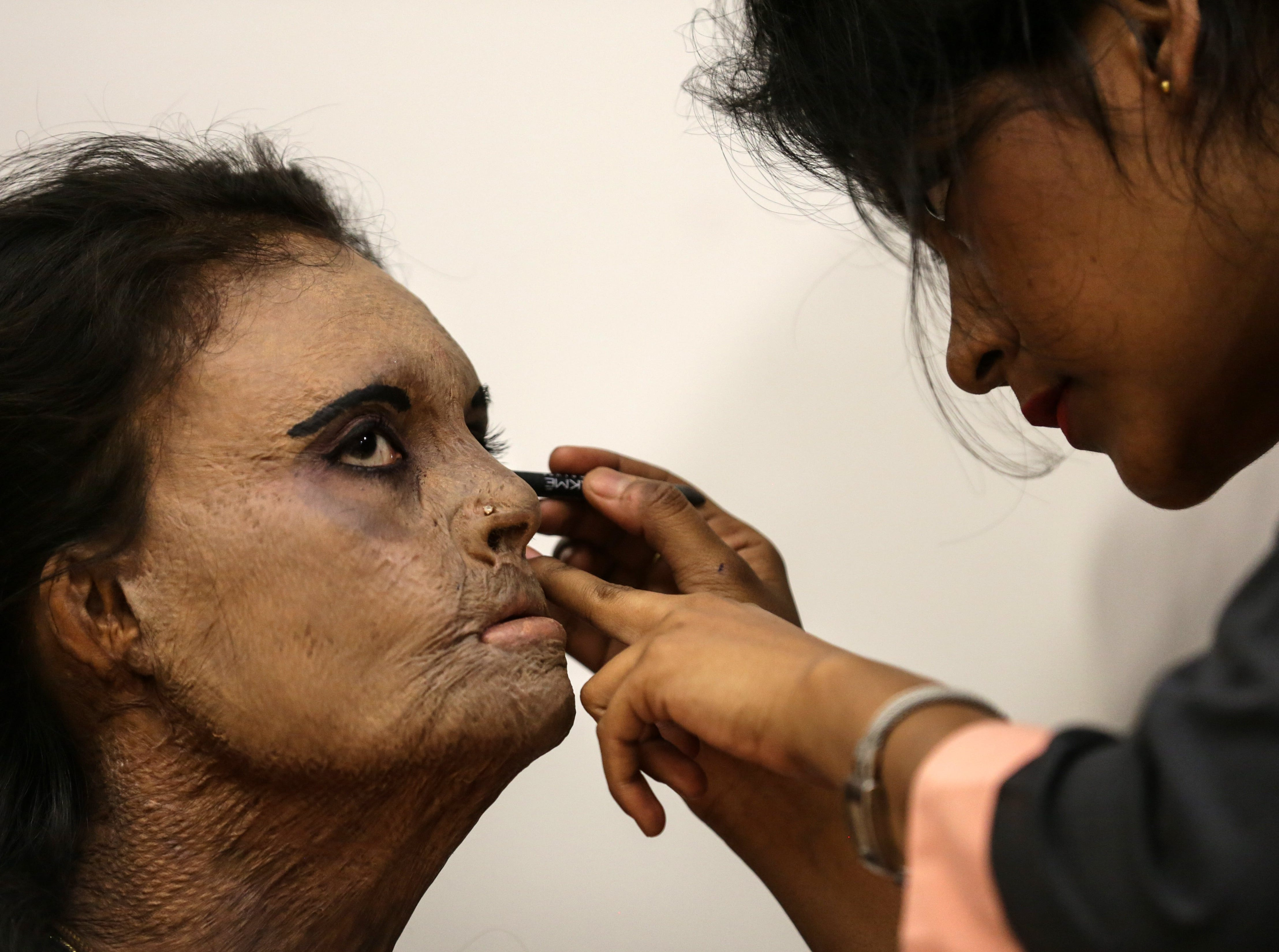 March 7, 2018: An acid attack survivor gets her make-up done prior to a fashion show, in Thane, India. Acid attack survivors are from NGO Acid Survivors & Women Welfare Foundation walked the ramp to create awareness and campaign of stopping acid sale and acid attacks on the eve of International Women's Day.