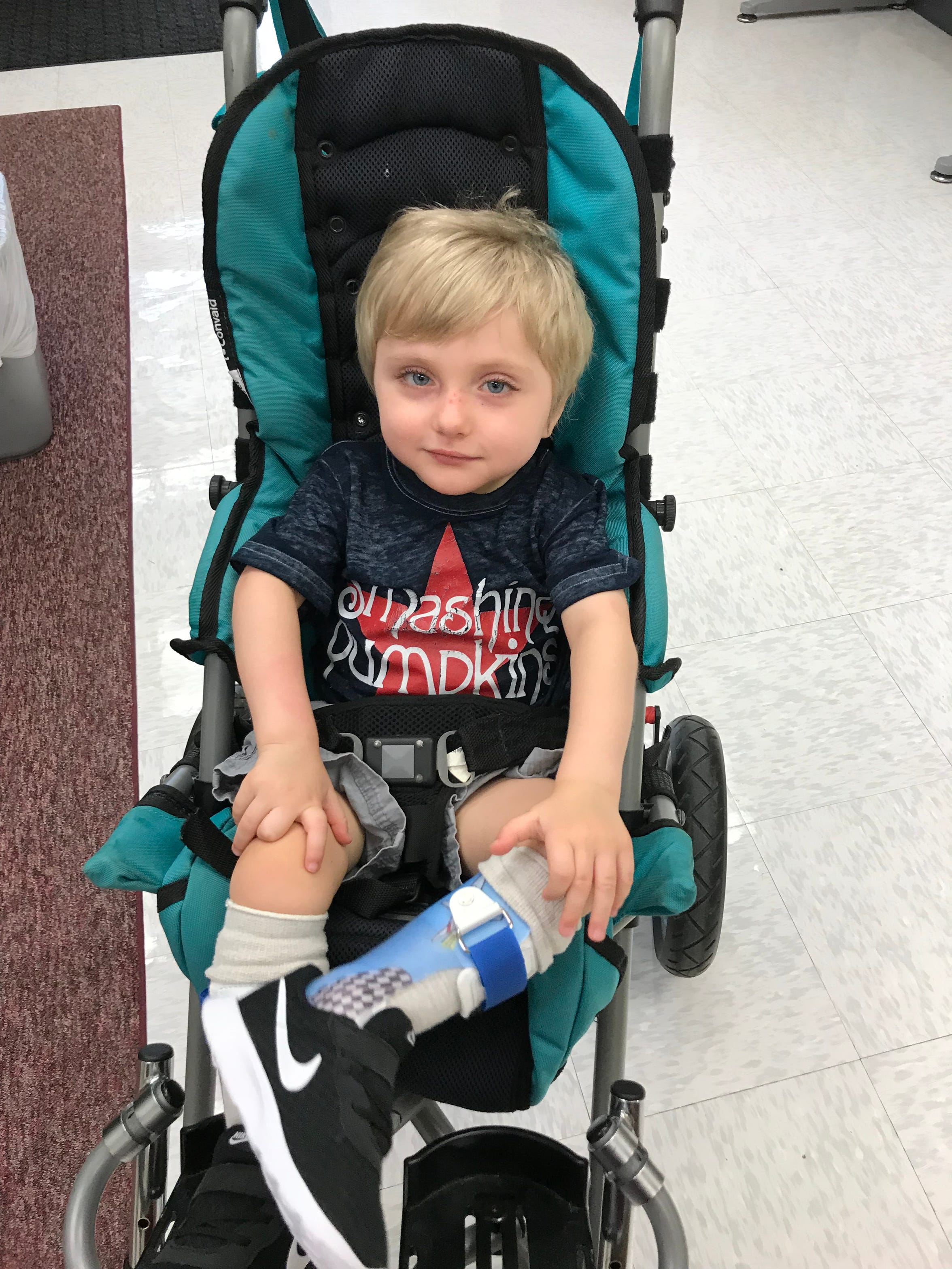 Carson Tugman, 3, of Staunton, at UVA Health Systems. Tugman suffers from a progressive neurodevelopmental disorder caused by a pathogenic variant of the MECP2 gene known as Rett Syndrome.