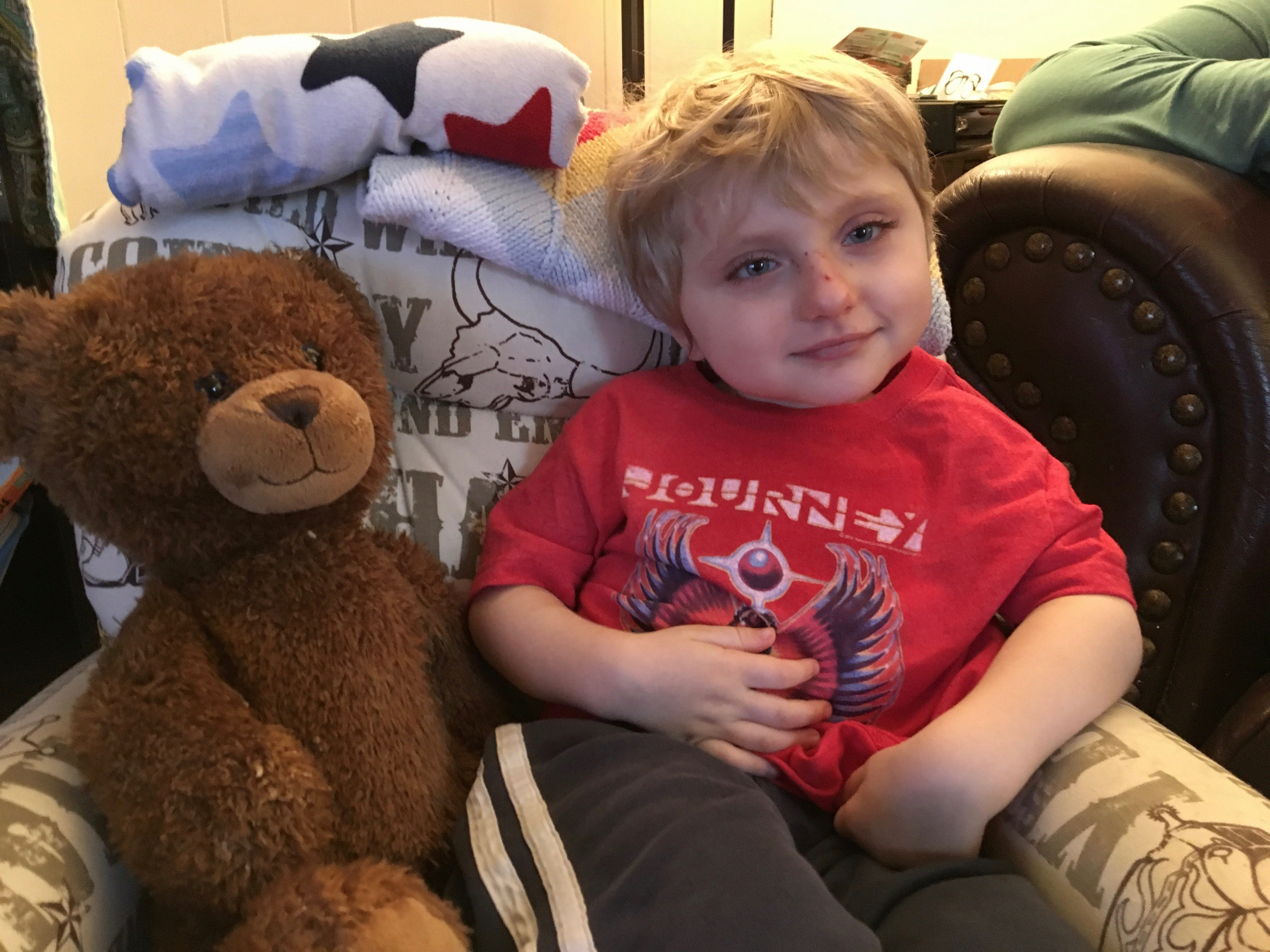 Carson Tugman, 3, in his home in Staunton on Monday, Dec. 31, 2018. Tugman suffers from a progressive neurodevelopmental disorder caused by a pathogenic variant of the MECP2 gene, known as Rett Syndrome.