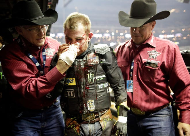 Chase Outlaw, shown in February, collided with a bull in July, breaking more than 30 bones in his face and requiring emergency reconstructive surgery.