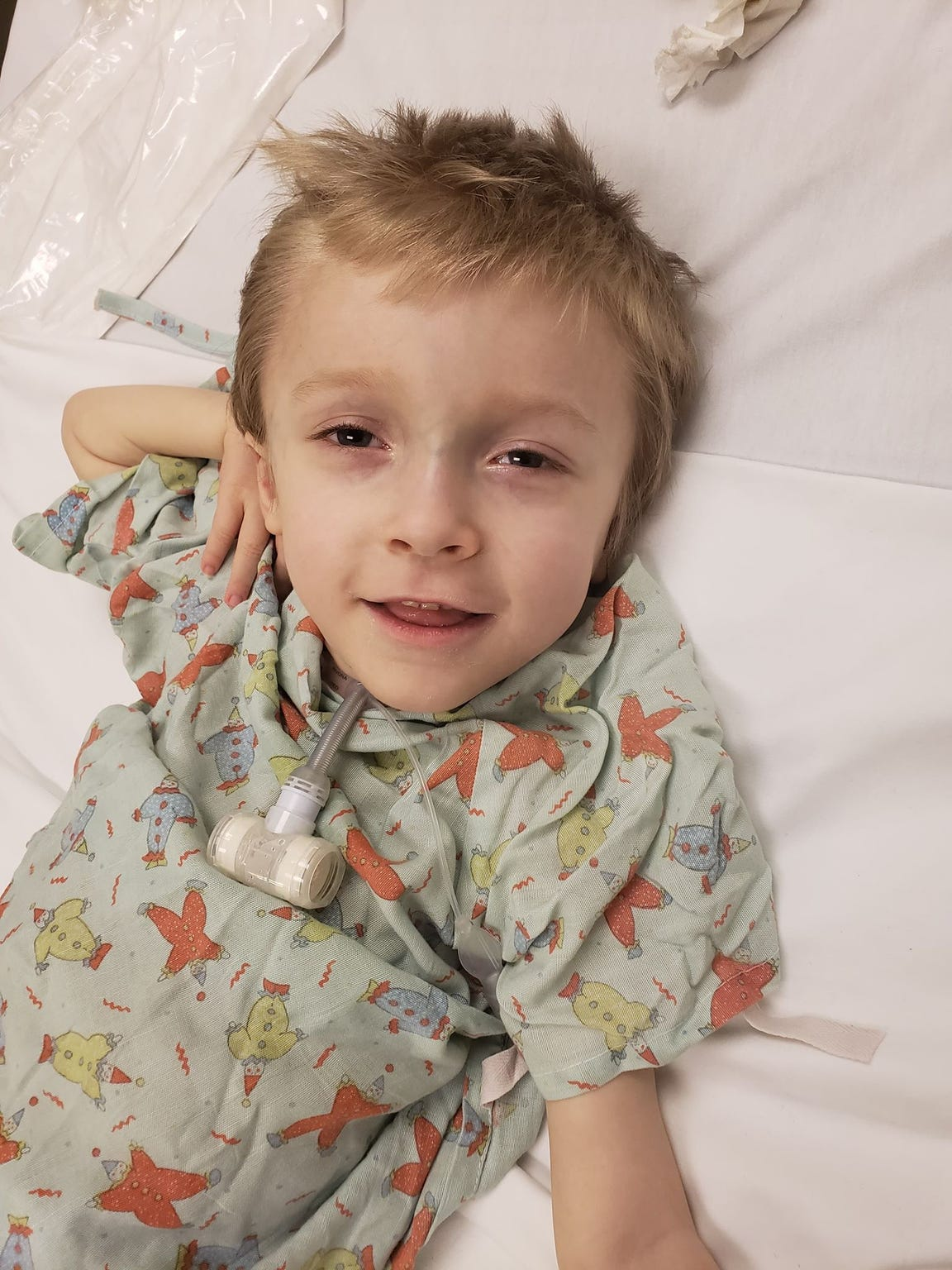 Logan Lacy, 4, before surgery on Dec. 18 in California.