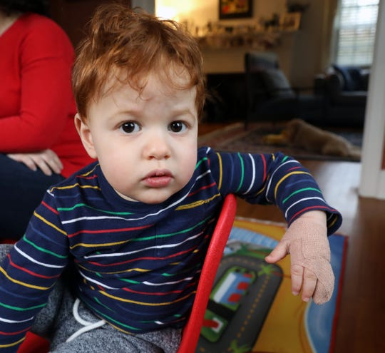 21-month old Max Blank is pictured at home in Scarsdale, Jan. 4, 2019.  The tip of Max's finger was shorn off while at a day care facility in Dobbs Ferry.