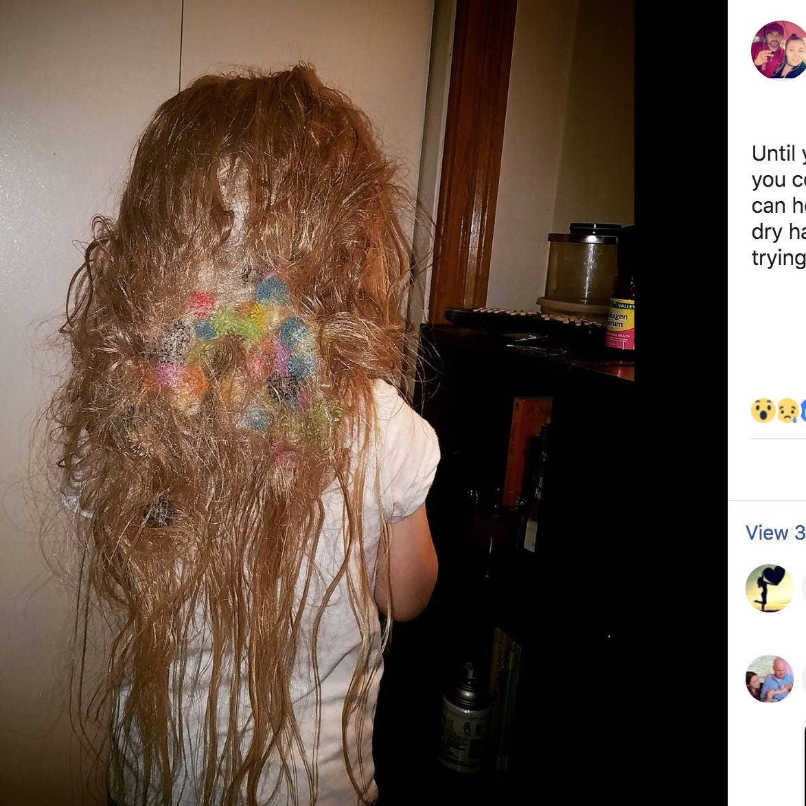 More than 50 Bunchems, colorful toy balls, were tangled in an Arkansas girl's hair. Her parents are now warning about the toys.
