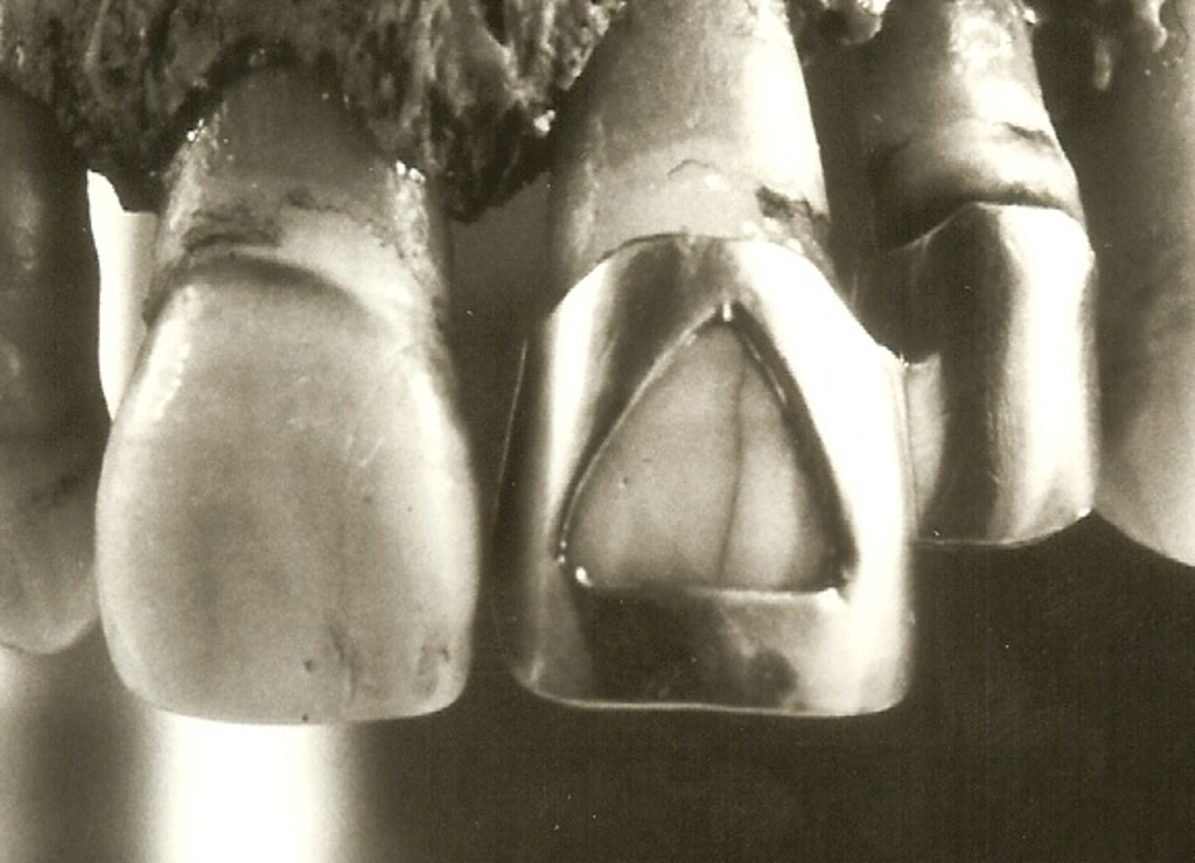 The skeletal remains found by law enforcement in 1977 had two distinctive gold teeth. An investigator is trying to identify the female victim.