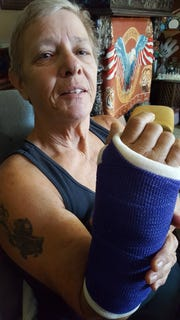 Navy veteran Phyllis  Seleska with a cast on her broken wrist.